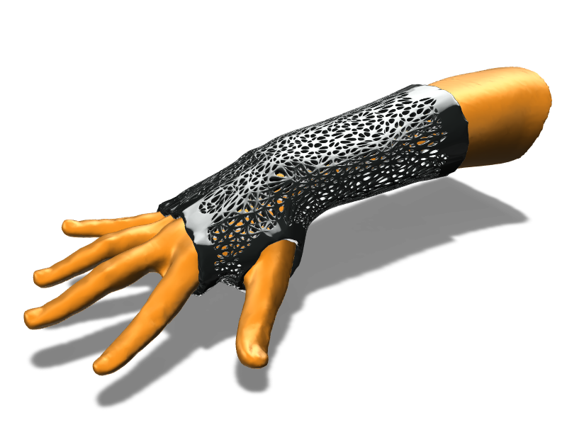 Arm splint with Voronoi perforation pattern  - 3D design by ilmar3designs Dec 27, 2017